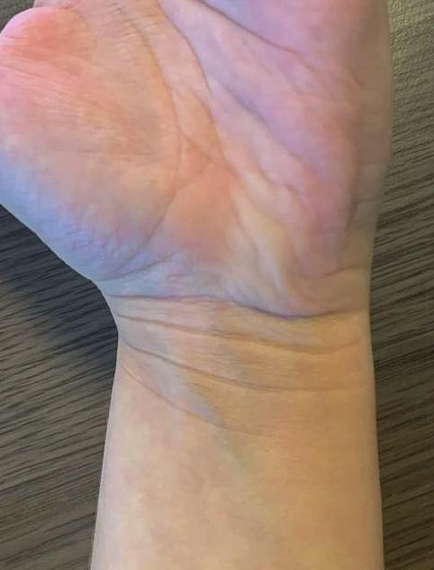 Voorbeeld tweede huidplooi